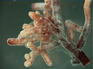 Wurzelspitzen einer Pflanze mit Mykorrhiza