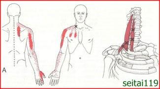 肩甲骨周辺の痛み治療