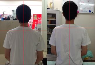 左:施術前 右:施術後