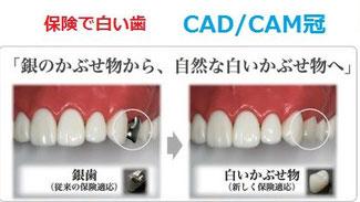 八戸市の歯医者 くぼた歯科医院 保険で白い歯