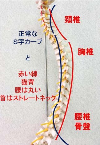 京都市中京区にある烏丸三条畠鍼灸院整骨院、子供の姿勢矯正、猫背、ストレートネックの原因はこちらです。