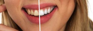Zahnpflege vor der Hochzeit