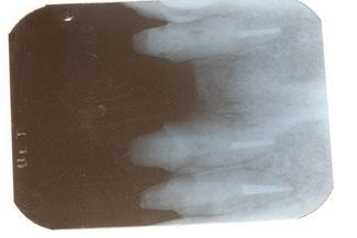 天然の歯を残す治療