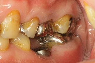 インプラントに必要な歯茎問題を起こしやすい歯茎の状態