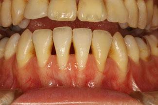 歯茎が下がってしまうと磨く必要がある範囲が増えてしまいます。