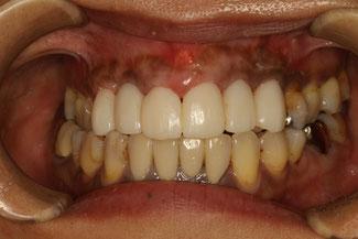 ブリッジの仮歯