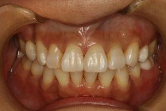 前歯の歯ぐきが下がって黒