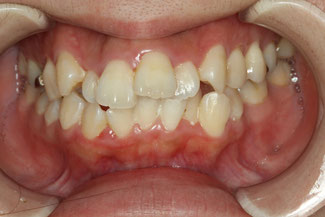 矯正治療中に歯周病