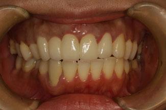 差し歯の歯茎が下がってしまった場合の治療