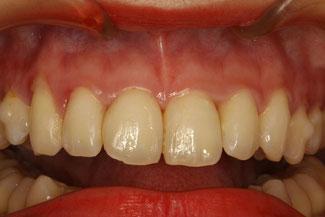 歯と歯の間の隙間を詰め物で埋めた場合