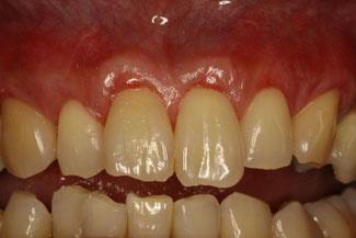 歯肉が下がってしまった時に回復させる治療