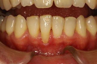 歯茎が下がってきた