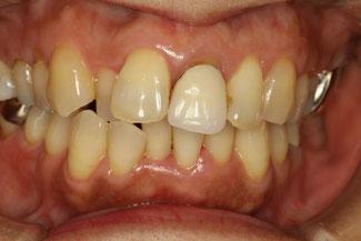 歯茎が下がってしまった差し歯