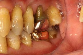 歯周病が進行して歯茎が下がる