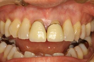 歯茎が下がって目立ってしまった差し歯