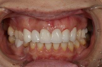差し歯の歯茎の退縮