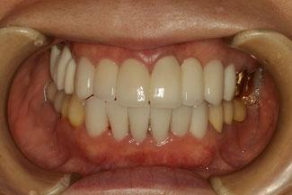 重度の歯周病と審美歯科