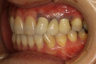 歯茎の黒ずみの治療