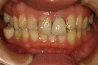 前歯の審美歯科治療前