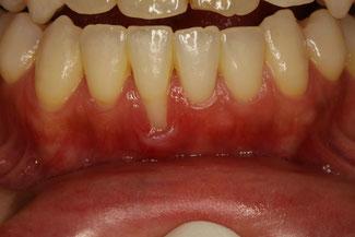 矯正治療後に歯茎が下がってしまった場合は、歯ぐきの再生治療を行う事で歯茎が回復します.