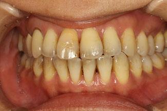 歯と歯の間の隙間を埋める矯正治療