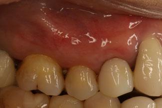 下がった歯ぐきを回復して差し歯を治療