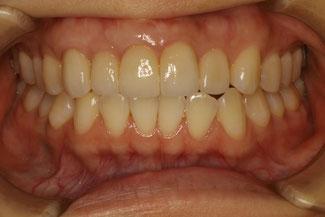 歯ぐきの再生治療でオールセラミックの長さをそろえます.