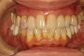 それでも歯ぐきの再生で見た目が改善