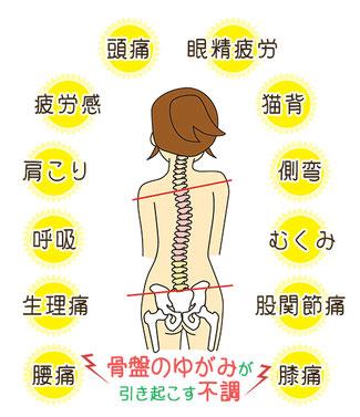 豊橋の腰痛専門整体院えんぎ堂の考える骨盤のゆがみが与える全身への影響