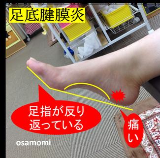 足底腱膜炎・浮き指は、昭島市のオサモミ整体院。拝島駅から無料送迎サービス。