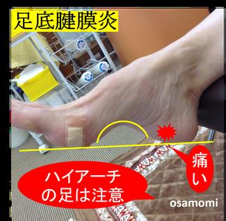 足底腱膜炎は昭島市のオサモミ整体院。ハイアーチの足は注意!