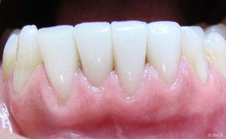 Veneers der unteren vier Schneidezähne bei einer Raucherin vier Jahre nach dem Einsetzen: Es sind keinerlei Verfärbungen sichtbar.