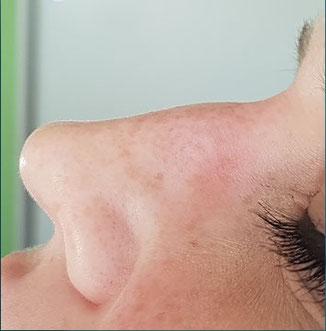"""kleiner Nasenhöcker vor Behandlung.                         Weitere Fotos finden Sie auf der Seite """"Gesicht"""""""