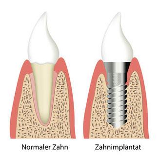 Normaler Zahn und Zahnimplantat Zahnarztpraxis Berthold Pilsl - Garmisch - Partenkirchen© bilderzwerg fotolia.com