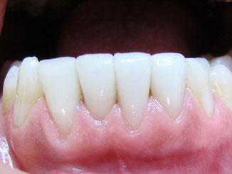 Veneers der unteren vier Schneidezähne (Aufnahme 4 Jahre nach dem Einsetzen): Das Zahnfleisch ist hell rosa und gesund.© Dr. Hartmut Sauer