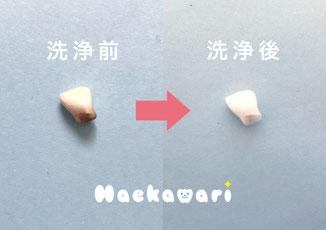 乳歯ケース 乳歯入れ トゥースケース はえかわり 乳歯の生え変わり 乳歯の洗浄 乳歯の保存