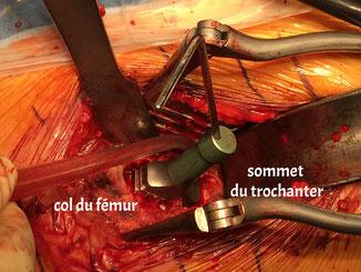 arthrose hanche prothèse réglage longueur Dr Rémi chirurgie orthopédique Toulouse St Jean Croix du Sud