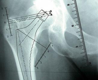arthrose hanche prothèse longueur des jambes Dr Rémi chirurgie orthopédique Toulouse La croix du Sud