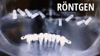 Skurrile zahnmedizinische Röntgenbilder