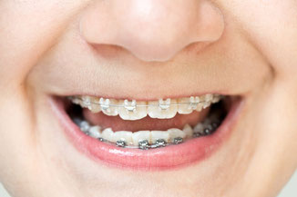We offer individual appliances to suit your teenager's orthodontic situation