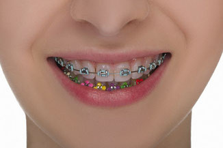 We offer individually designed metal brackets for teenager orthodontic treatment