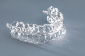 Absolutely decent: Invisalign® Teen