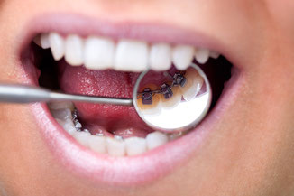 Modern orthodontic techniques allow a completely inconspicious treatment for adults