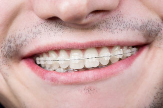 We offer decent solutions for adults who seek orthodontic treatment