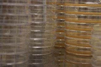 Stapels kweekplaten waarop bacteriën gekweekt worden