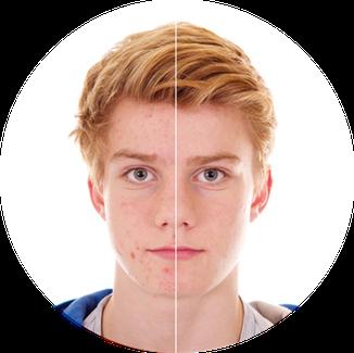 Pubertäre Hautprobleme oder eine Problemhaut mit Pickeln, Akne oder Mitessernn