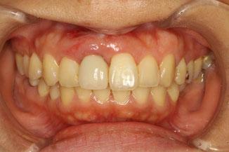 インプラントの歯茎の再生後