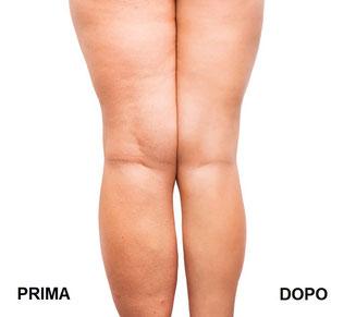tecarterapia dermatofunzionale, drenaggio arti, postumi liposuzione