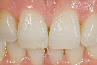 Parodontose, Parodontitis, Zahnfleischbluten, gelockerte Zähne