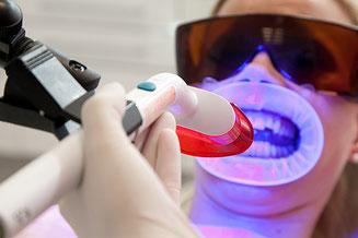 blanqueamiento, dental, dientes blancos, sesion, laser, peroxido, barato, clínica dental integral bruno negri, bruno dentista, pilar de la horadada, calidad, implantes, dentista, dolor muela, empaste, bruno negri, odontologo, doctor, dr. bruno negri,